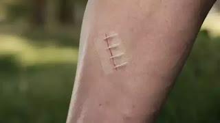 Công ty Mỹ sản xuất miếng dán khép kín vết thương nhanh gấp 8 lần so với khâu truyền thống