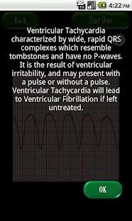 Easy ECG- screenshot thumbnail
