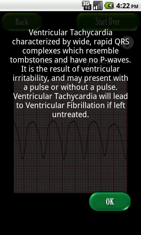 Easy ECG- screenshot
