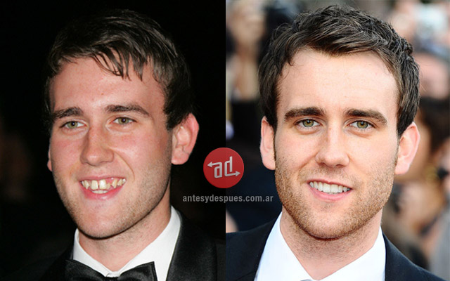 New teeth of Matthew Lewis
