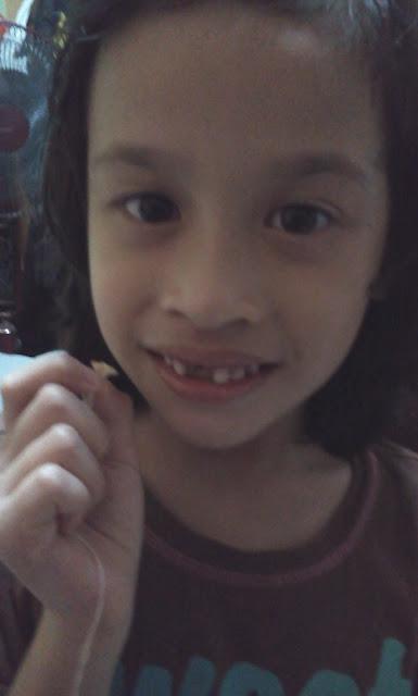 My sweetie Icha dgn dentist tak bertauliah