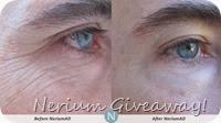 Nerium results