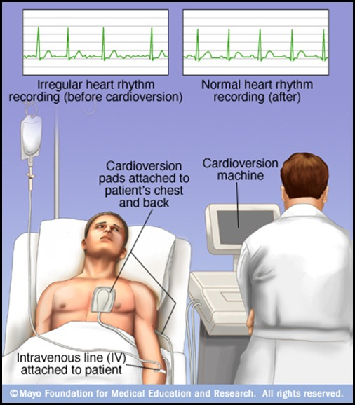 mcdc7_cardioversion