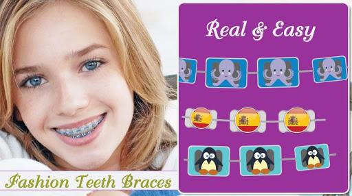 braces app