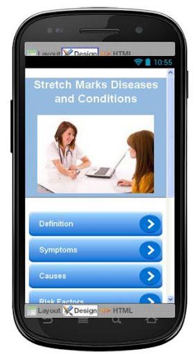 Stretch Marks Information