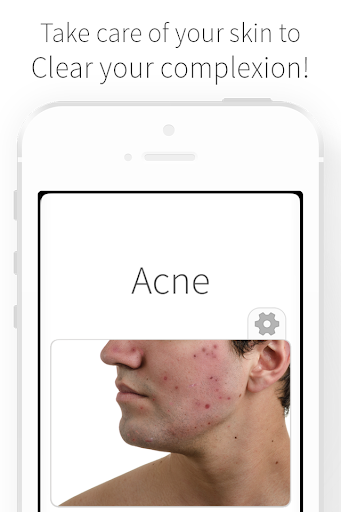 Acne - Causes and Remedies