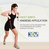 3DRX Facet Joint Syndrome