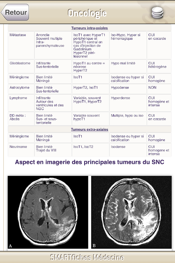 SMARTfiches Oncologie Free- screenshot