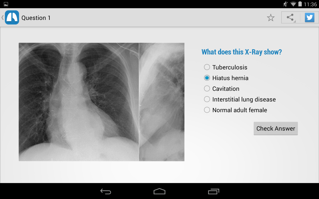 Chest X-Ray Training- screenshot