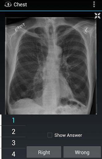 Radiology Flashcards: Chest