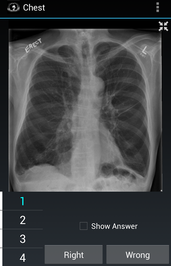 Radiology Flashcards: Chest- screenshot
