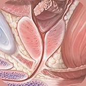 Understanding Prostate Cancer