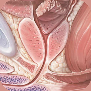 Understanding Prostate Cancer 醫療 App LOGO-硬是要APP