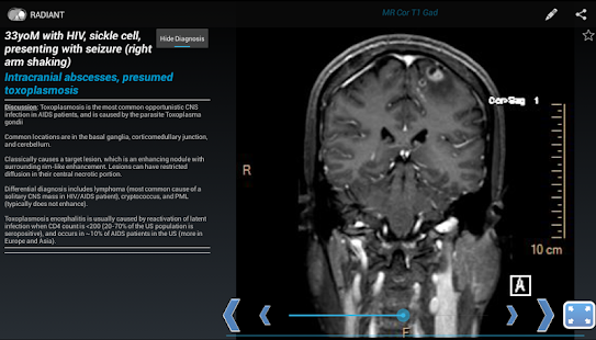 RADIANT: Share Radiology Cases screenshot