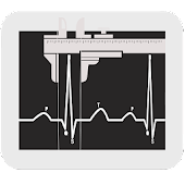 ECG Analyzer