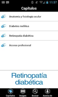 Retinopatía Diabética- screenshot thumbnail