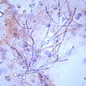 Urinemicro