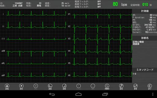 Tablet ECG