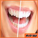 تبييض الاسنان فى المنزل - جديد icon