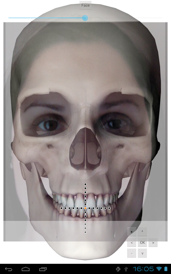 Virtual Facebow - screenshot