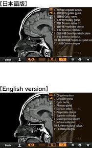 Interactive CT and MRI Anatomy v1.2