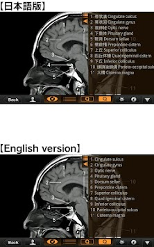 Interactive CT and MRI Anatomy APK screenshot thumbnail 3