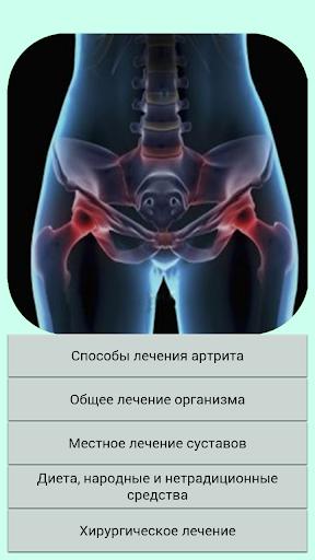 Лечение суставов.