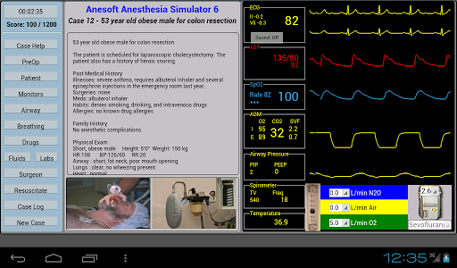 【免費醫療App】Anesthesia Sim 6-APP點子
