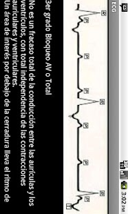 Electrocardiograma ECG Tipos- screenshot thumbnail
