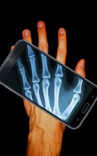 X射線人體掃描儀