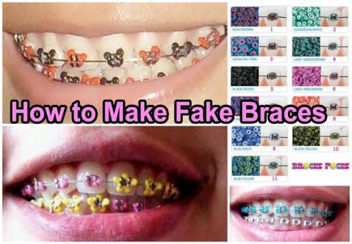 How to Make Fake Braces