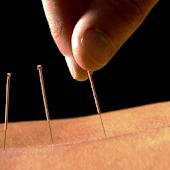 Acupuncture NewsChannel