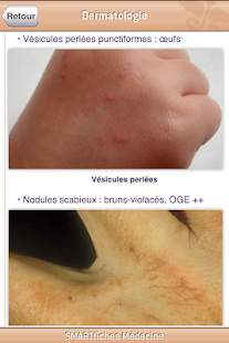 SMARTfiches Dermatologie - screenshot thumbnail