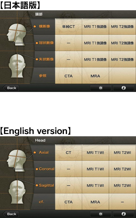 CT・MRI解体新書- スクリーンショット