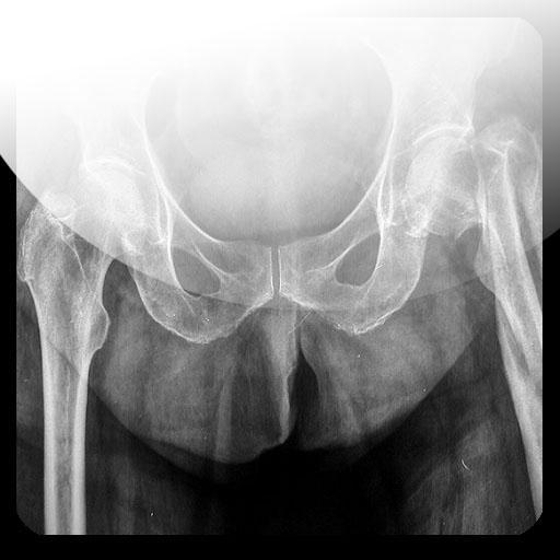 Radiografias de examenes LOGO-APP點子