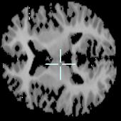 Brain viewer