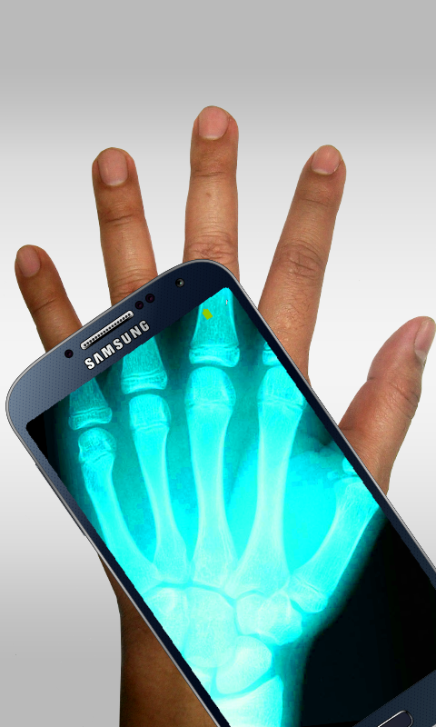 Xray Scanner Prank- screenshot