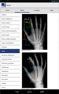 玩免費醫療APP|下載Ortho Traumapedia app不用錢|硬是要APP