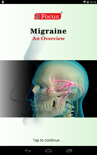overview of migraines essay