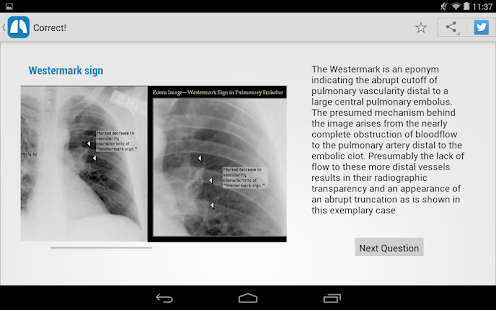 Chest X-Ray Training- screenshot thumbnail