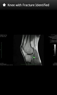 X-Rays and Body Scans - screenshot thumbnail