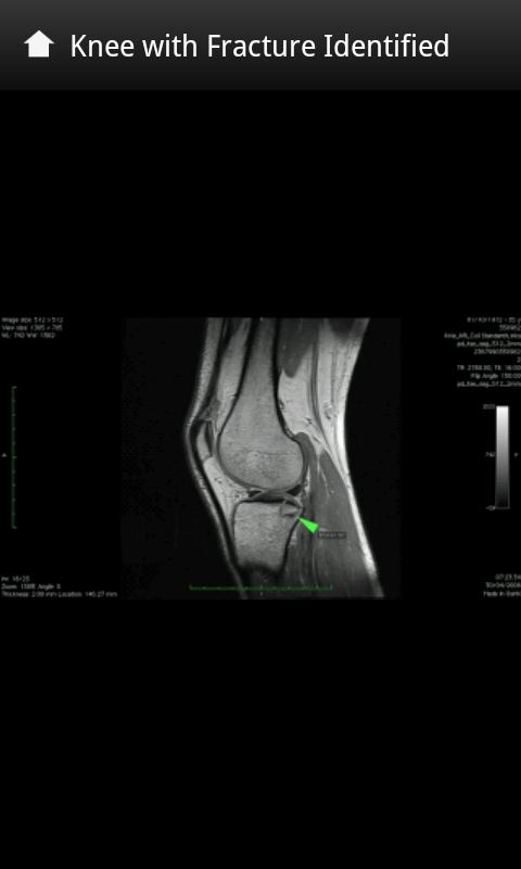 X-Rays and Body Scans - screenshot