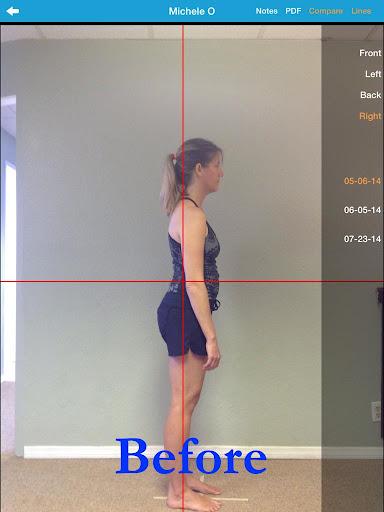 【免費健康App】Body Align Pro-APP點子