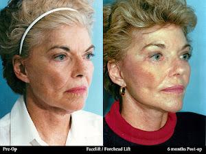 Facial Surgeries