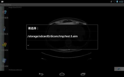 Dicom Editor - screenshot thumbnail