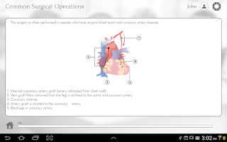 Screenshot of Surgery 101 by GoLearningBus