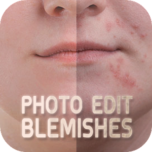 Photo Edit Blemishes 攝影 LOGO-玩APPs