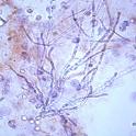 Urinemicro icon