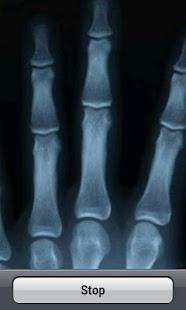 X-Ray Scanner XD screenshot