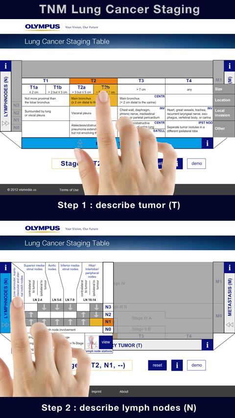 Lung Cancer Staging Table- screenshot